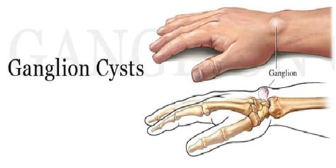 best homeopathy treatment for ganglion cyst homeosure