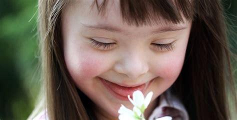 imagenes niños sindrome down jugando irlanda protege el derecho a la vida de los beb 233 s con