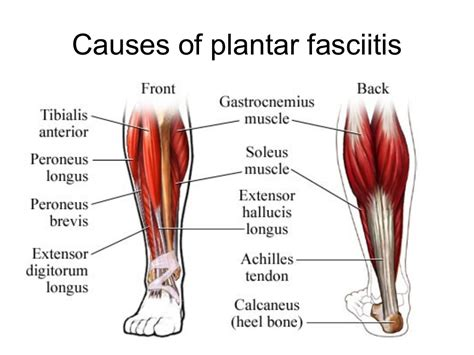 What Is Planter Fascitis by What Causes Plantar Fasciitis