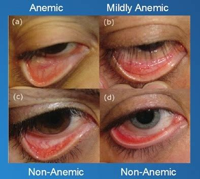 anemia skin color general characteristics of anemia the of medicine