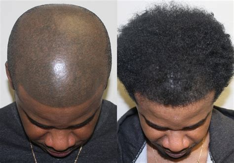 in south africa hair transplant african american hair transplant testimonials reviews