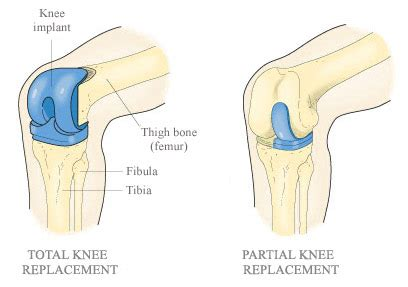 the differences between partial and total knee replacement