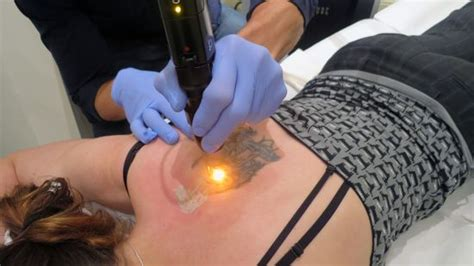 tattoo removal technician salary top 15 removal tips and aftercare amazing