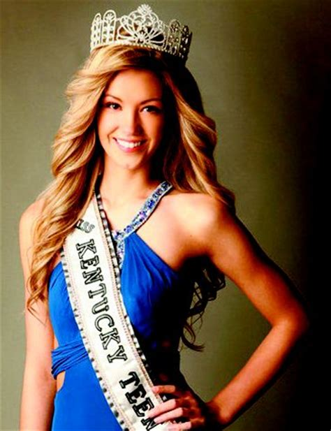injury doesn't damage beauty queen's outlook