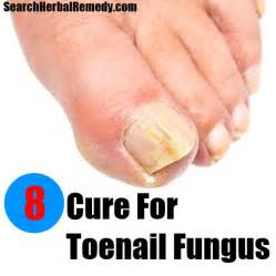 toenail fungus home remedy cure for toe fungus more information