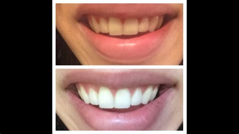 teeth whitening routine enamel safe youtube