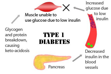 learn the types of diabetes mellitus, diet, exercise and