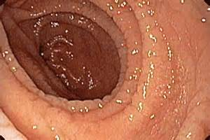 study undiagnosed coeliac disease gponline