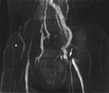 arun's mri protocols: pelvis venogram mri protocol