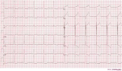 lvh pattern aortic stenosis electrocardiogram wikidoc