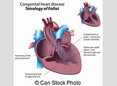 Pulmonary Clipart Vector and Illustration. 1,205 Pulmonary ... Lungs After Smoking Clip Art