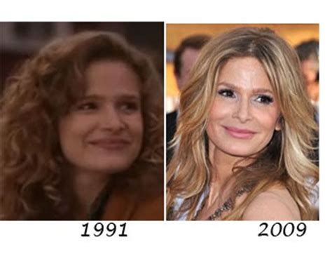 375 best images about celebrity plastic surgery on pinterest celebrity plastic surgery before after without pinterest