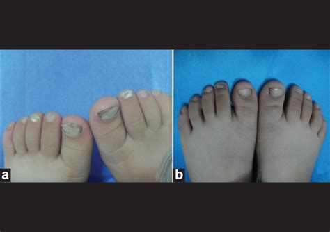 indiafeettouching feetcustomsfungal infectiondermatophyte view superficial white onychomycosis due to trichophyton rubrum