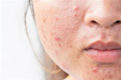 How To Get Rid Of Acne Scars by How To Get Rid Of Acne Scars Fast And Naturally 19
