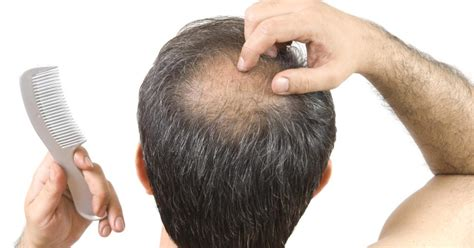 does reducing 5ar regrow hair marriage may help lower dementia risk