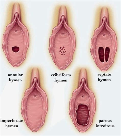 different sizes and shapes of viginal and hymen with pictures imperforate hymen stepwards
