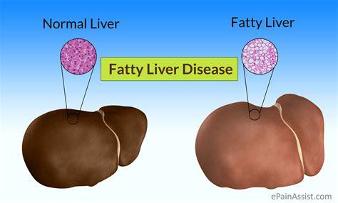 fatty liver disease fld causes symptoms treatment