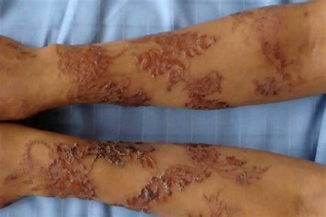 black henna tattoo side effects temporary tattoos may put you at risk mz mahogany chicmz