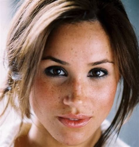 meghan markle stunning chicki lovely before lips after