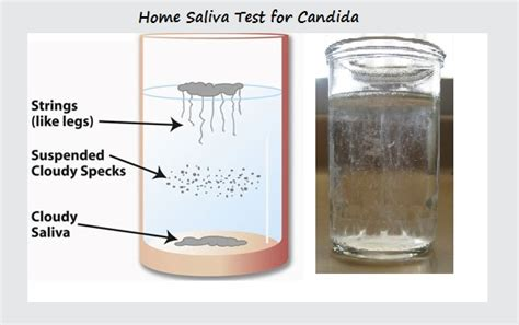test saliva candida rheumatoid arthritis the of candida my