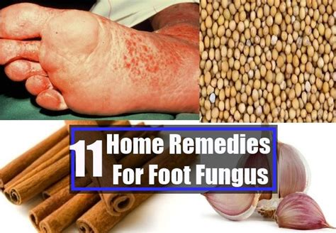8 Best Home Made Treatments by 26 Best Images About Infection On Sinus
