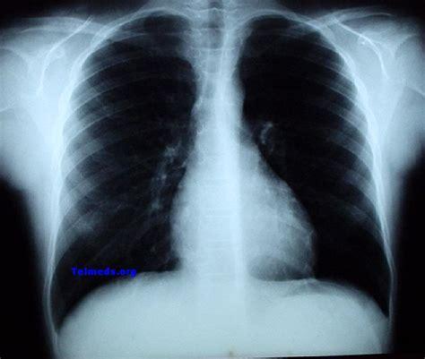 rx horizonte imagenes medicas y odontologicas telmeds org 187 evaluaci 243 n de radiograf 237 as de t 243 rax