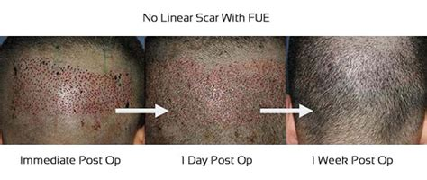 does fue hair transplant work fue hair transplantation cost fue transplant hyderabad