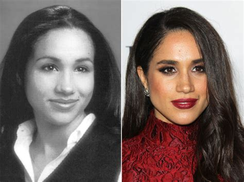 meghan markle plastic surgery before and after
