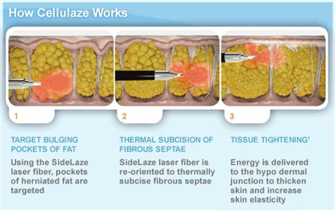 cellulite best treatment best laser treatments for cellulite removal