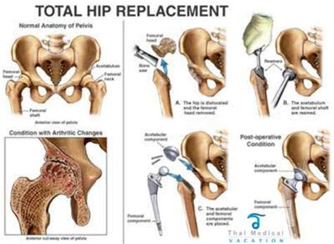 hip replacement hip arthroplasty total hip replacement surgery
