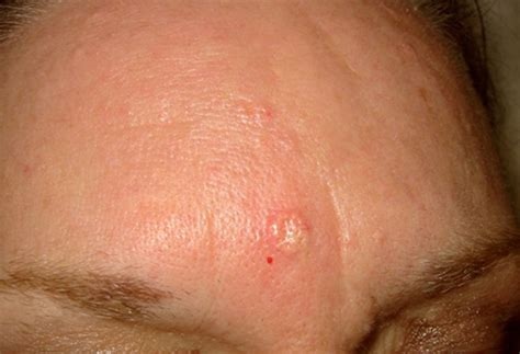 sebaceous cyst cyst sebaceous gland hyperplasia pictures to pin on pinsdaddy