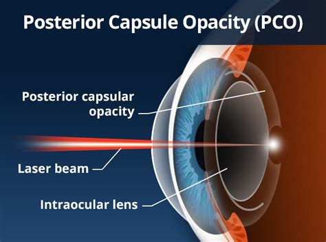 Resume Normal Activities After Cataract Surgery Cataract Surgery Complications Allaboutvision