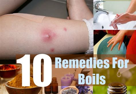 10 home remedies for boils treatments cure for