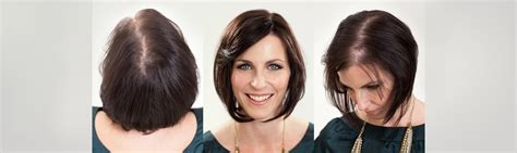 special cuts for women with hairloss special cuts for women with hairloss new research alert
