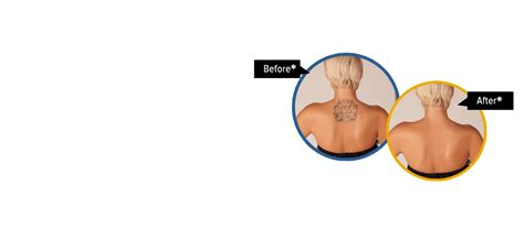 tattoo removal bangalore laser tattoo removal in bangalore