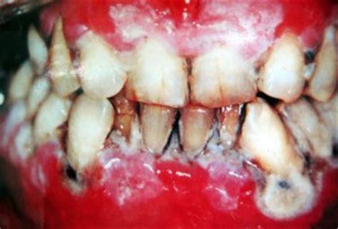 Perawatan Membersihkan Karang Gigi menangani kalkulus atau karang gigi pembersihan karang