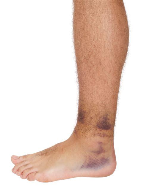 sprained ankle sprained ankle podiatry foot ankle specialistlexington podiatry