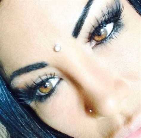 eye color surgery wrong instagram model gets blind after surgery to change eye
