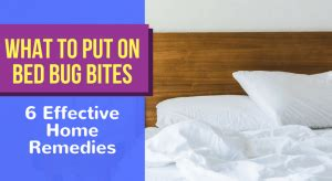 put  bed bug bites  effective home remedies