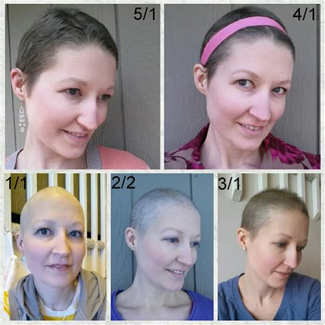 pictures of hair growth month by month after chemotherapy by people four months of hair growth