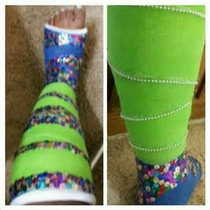 arm cast colors diy sequined leg cast cast fashion