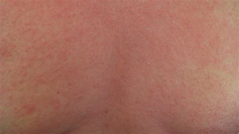 heat rash heat rash pictures remedies and more