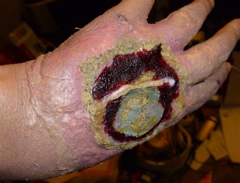 infected wound infected wound images