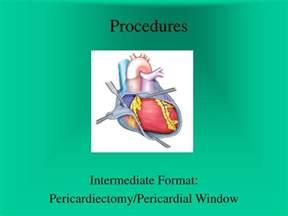 ppt procedures powerpoint presentation id 725393
