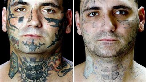 face tattoo removal before and after 25 removal before and after pictures inkdoneright