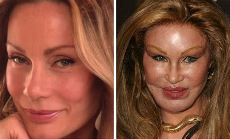 plastic surgery gone wrong 20 worst cases of celebrity plastic surgery gone wrong