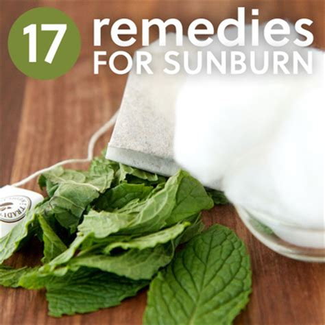 17 home remedies for sunburn herbs info