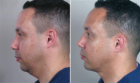 weak chin men chin augmentation for men new jersey chin implant