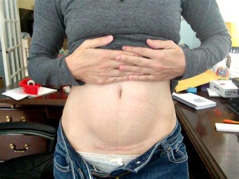 c section scar pain after 2 years 3 things about c section moms that everyone should know