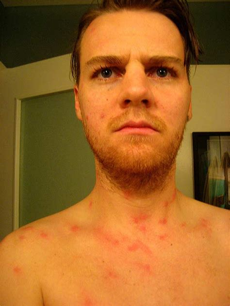 Bed Bug Nyc Bed Bug Bites Gallery In New York City Nyc